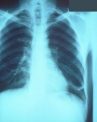 Pneumonia Latest Facts: Types, Causes, Symptoms and Treatments