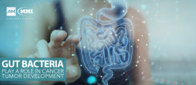 Gut Bacteria Play a Role in Cancer Tumor Development