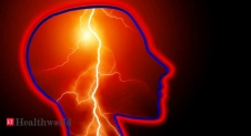 Stroke scans could reveal COVID-19 infection, Health News, ET HealthWorld